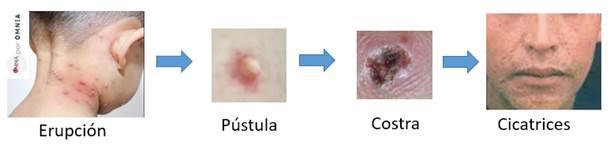 Fig. 1. Erupción en la piel producida por la viruela, aspecto de las pústulas, costras y cicatrices.